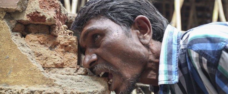 印度异食癖男子吃砖头20年